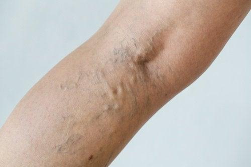 Åreknuder og sprængte blodkar kan opstå, hvis du går i for stramt tøj