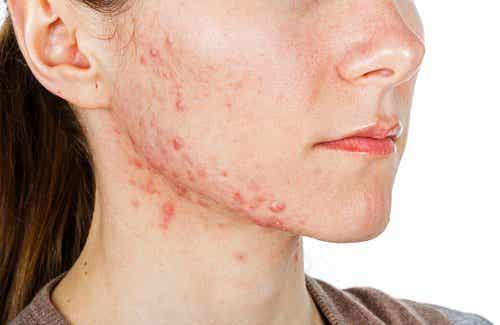 6 naturlige akne behandlinger