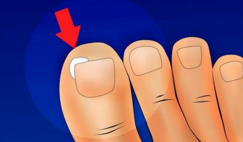 Forebyg og behandl indgroede tå negle – Lær hvordan her