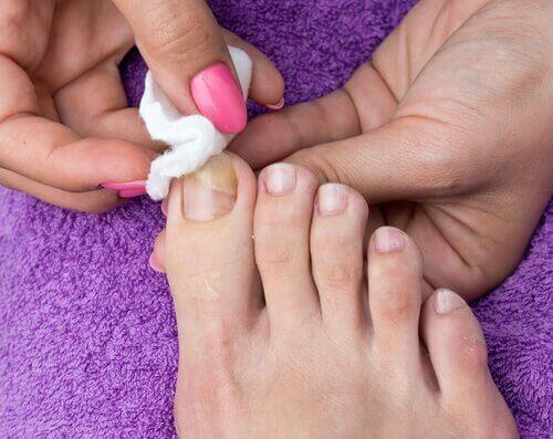 teknikken til indgroede tånegle