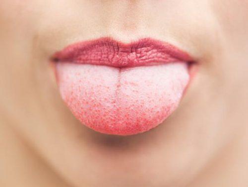 Hvidlig tunge