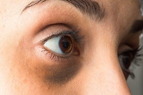 mørke rande under øjenen