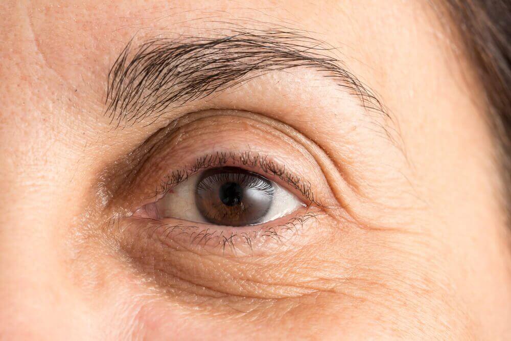 Sådan minimerer du mørke rande under øjnene: 5 naturlige metoder