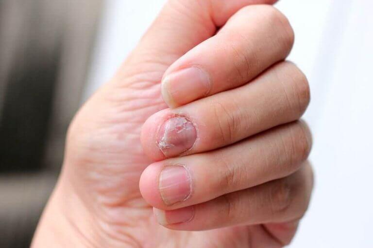 5 naturlige remedier til at behandle neglepsoriasis