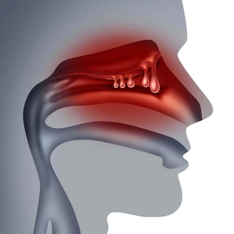 Sådan behandler du næsepolypper naturligt