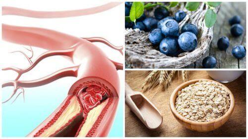9 fødevarer til at forbedre dine arteriers sundhed