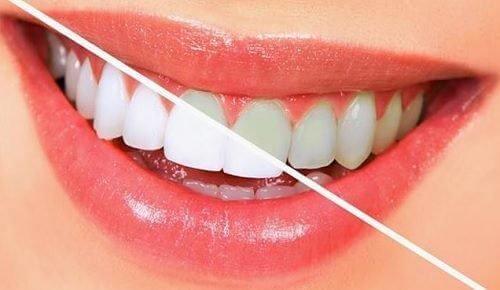 bleg dine tænder