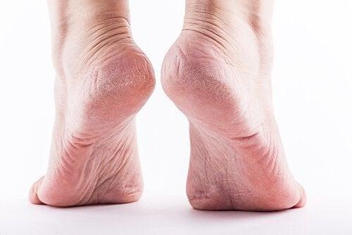 fjern hård hud på hælene