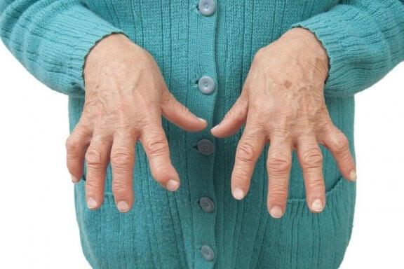 Smertelindrende midler mod reumatoid artritis