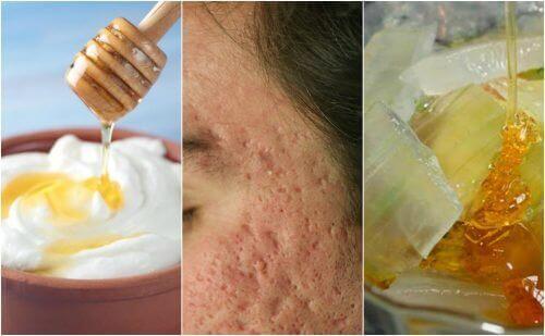 Ansigtsmasker til akne ar: 5 naturlige opskrifter der virker