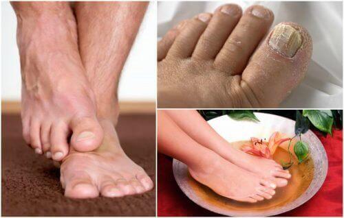 Symptomerne på fodsvamp: Har du dem?