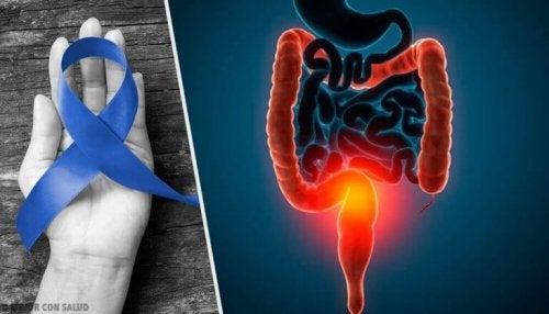 Ifølge WHO er der en sammenhæng mellem rødt kød og kræft