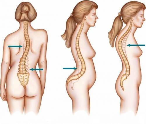 Flere kvinder end mænd bliver ramt af skoliose