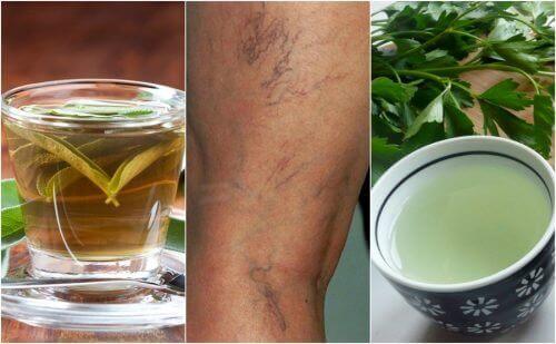 5 diuretiske teer til hvis du lider af åreknuder