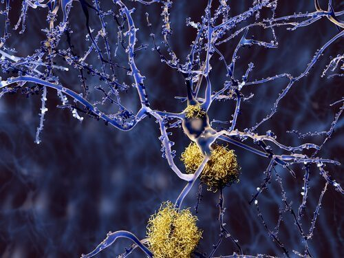 Typer af demens, som ikke er Alzheimers