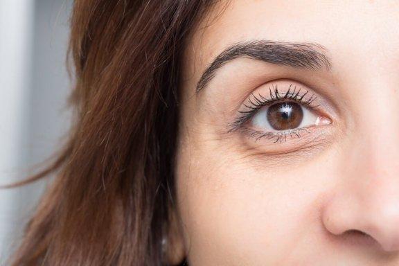 Sådan undgår du at få mørke rande under øjnene