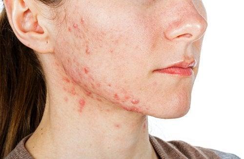En pige med slem acne.