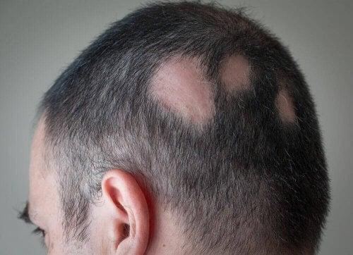 mand med tydelige bare pletter i håret