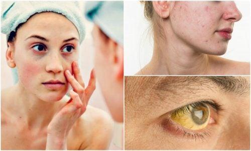 7 tegn på mangel på næringsstoffer, som viser sig på dit ansigt