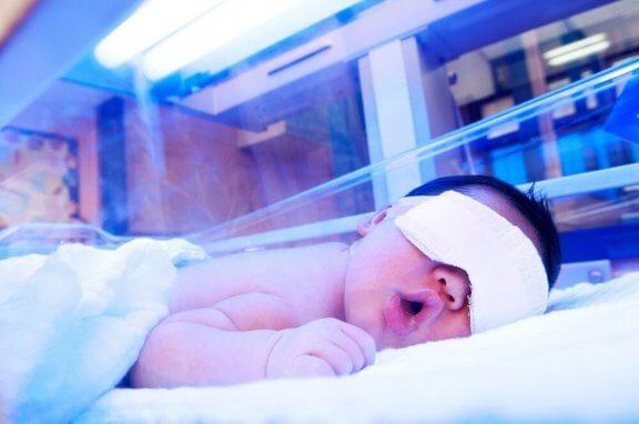 et spædbarn får behandling med lys
