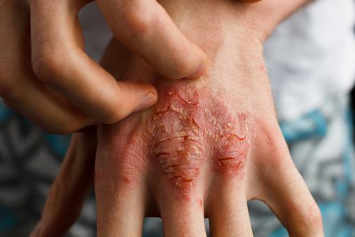En hånd med psoriasisgigt