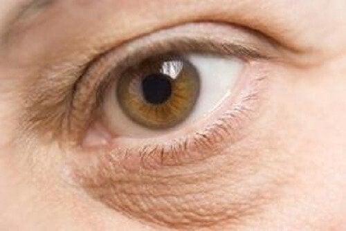 En kvinde med poser under øjnene.