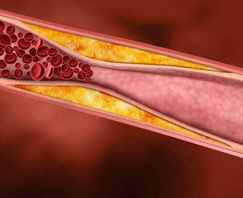 Indsnævrede blodårer