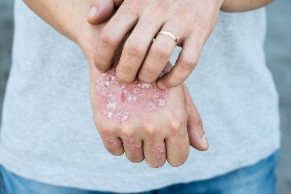 Fem naturlige remedier til at behandle psoriasis topisk