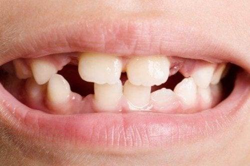 Misdannede tænder: Typer og behandling
