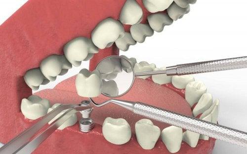 her ses hvordan man laver implantat i mund