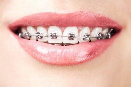tænder med bøjler