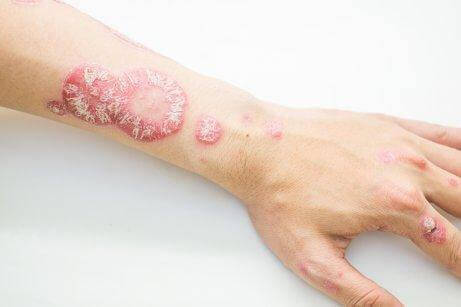 En arm med psoriasis.