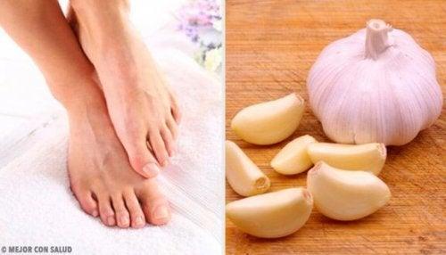 Brug knust hvidløg mod nedgroede tånegle
