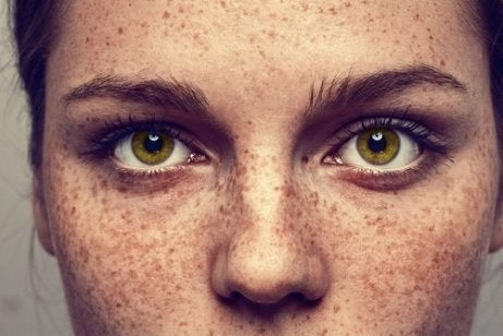 Nærbillede af kvinde med fregner