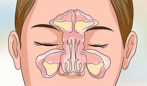 Tegning af snottet kvinde med behov for midler mod tilstoppet næse