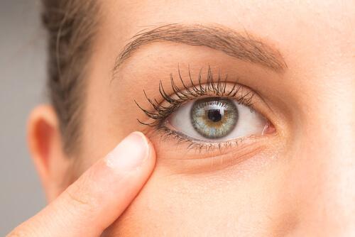 5 midler til behandling af mørke rander under øjnene