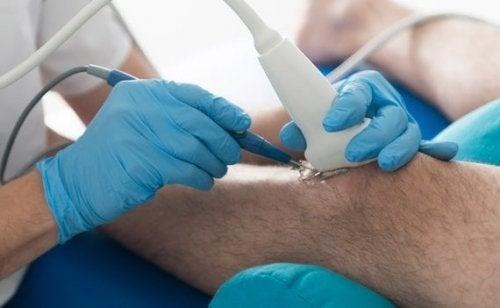 Læge opererer i knæ pga. gigt