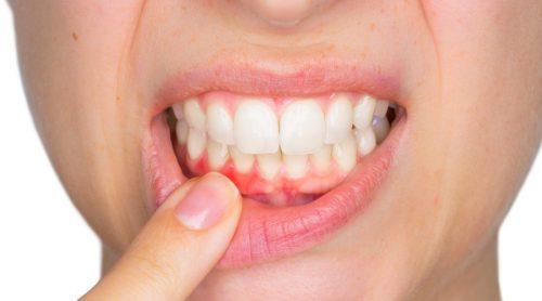 Sådan kan du behandle tandbylder