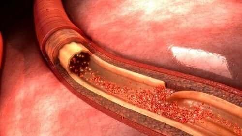 Aortadissektion: Hvad det er og hvad der forårsager det