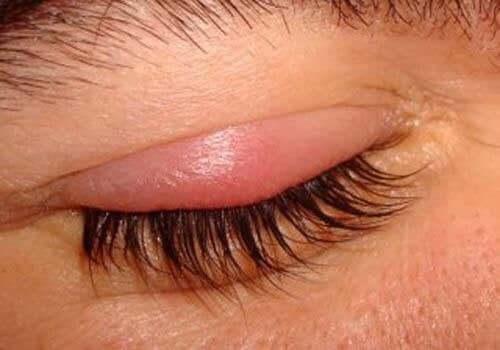 Hævet øje grundet blefaritis
