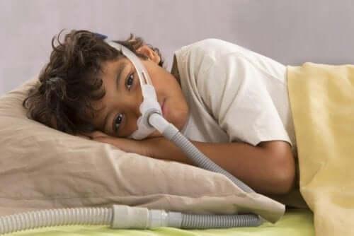 Obstruktiv søvnapnø hos børn bør opdages