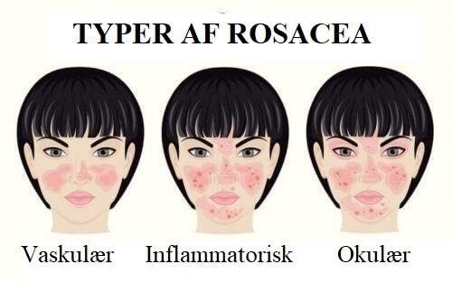 Forskellige typer af rosacea