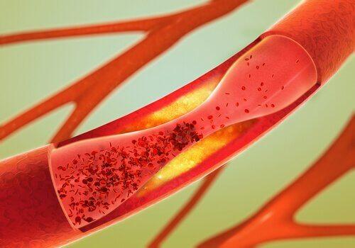 Naturlægemidler til at rense pulsårer