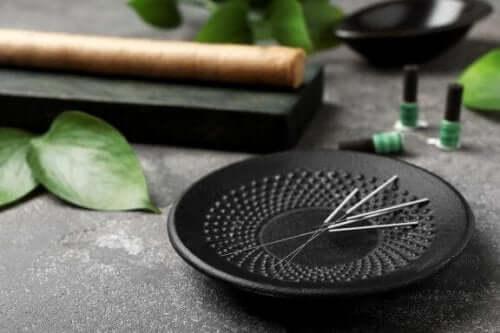 5 fordele ved akupunktur, som du bør kende