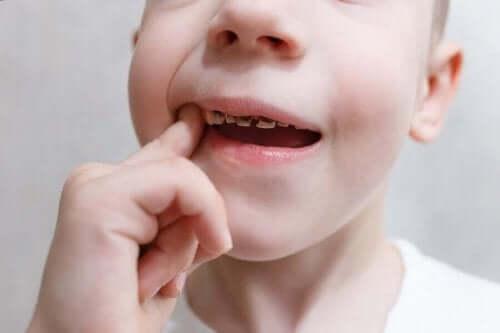 Dreng med rådne tænder