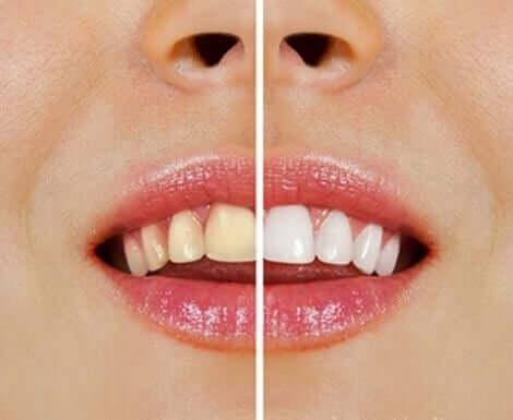 Naturlige produkter til at blege tænder