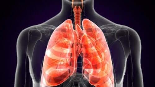 Lungepest: Hvad er det helt præcist?