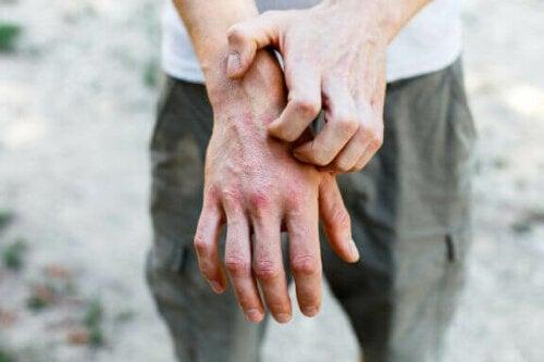 6 hjemmelavede midler mod kontakteksem