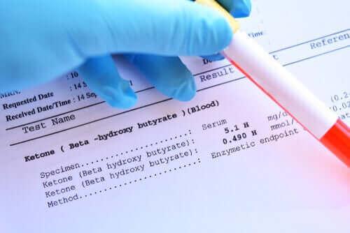 En blodprøve foran resultat