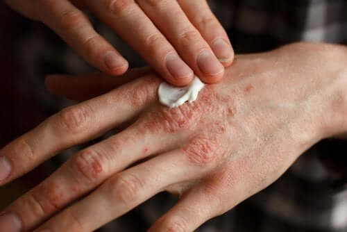 Person kommer creme på hånd med psoriasis
